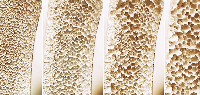 Leczenie Osteoporozy